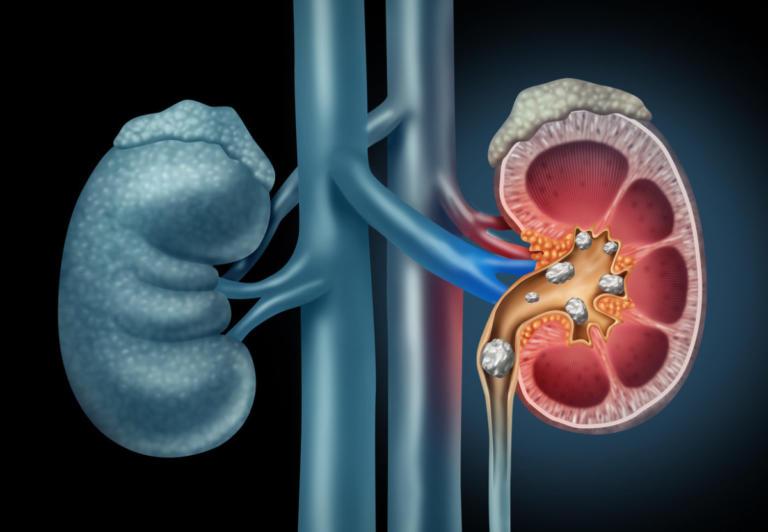 Πέτρες στα νεφρά: Όλα τα συμπτώματα – Πώς θα φύγουν ανώδυνα [vid] | Newsit.gr