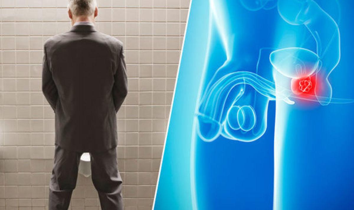 Καρκίνος του προστάτη: Πηγαίνετε στον γιατρό αν σας συμβαίνει αυτό κατά την ούρηση