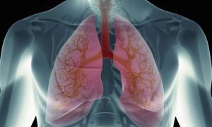 Πνευμονικό οίδημα: Προσοχή στα συμπτώματα – Τι πρέπει να κάνετε άμεσα!