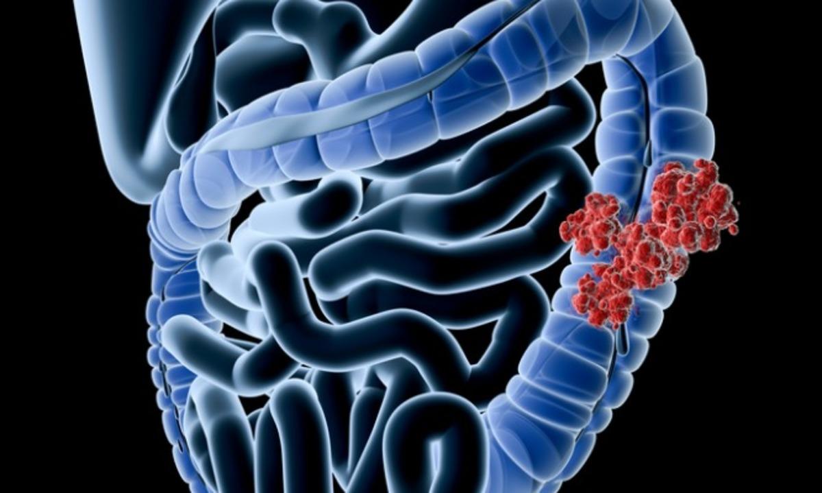 Καρκίνος του παχέος εντέρου: Προσοχή σε αυτά τα πρώιμα συμπτώματα | Newsit.gr