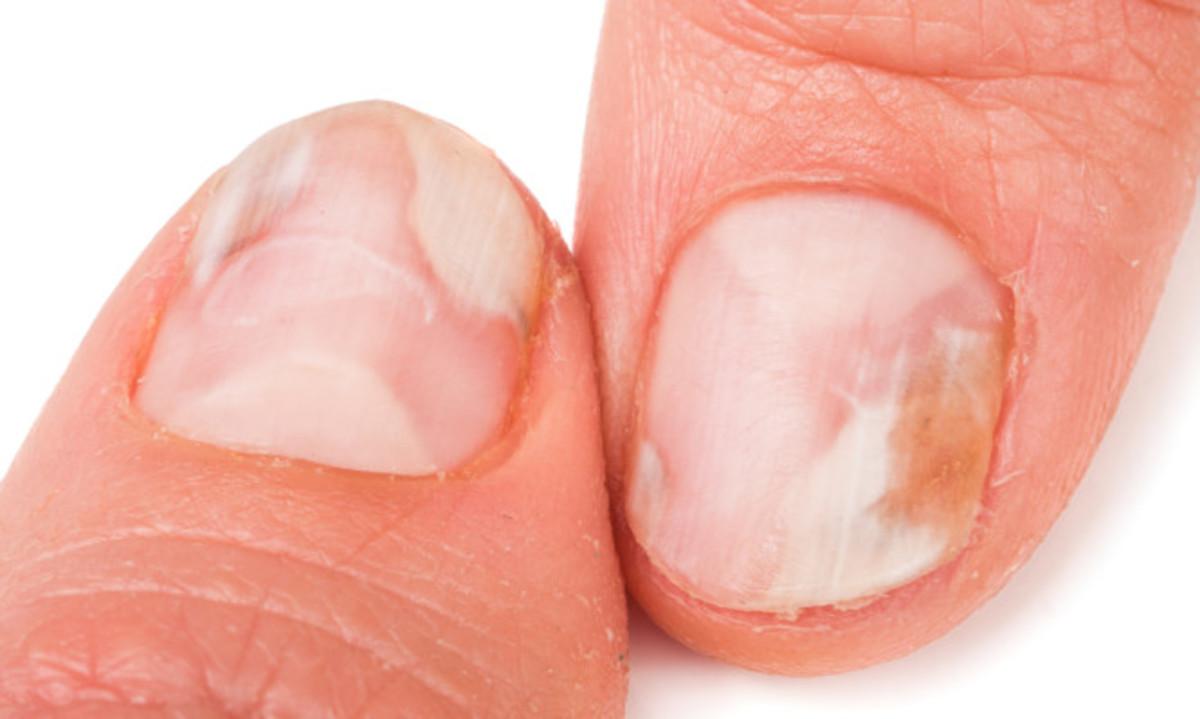 Μύκητες στα νύχια χεριών και ποδιών: Οι 8 κανόνες πρόληψης | Newsit.gr