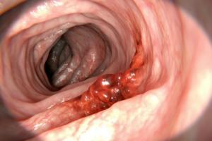 Καρκίνος του παχέος εντέρου: Προσοχή σε αυτά τα πρώιμα συμπτώματα