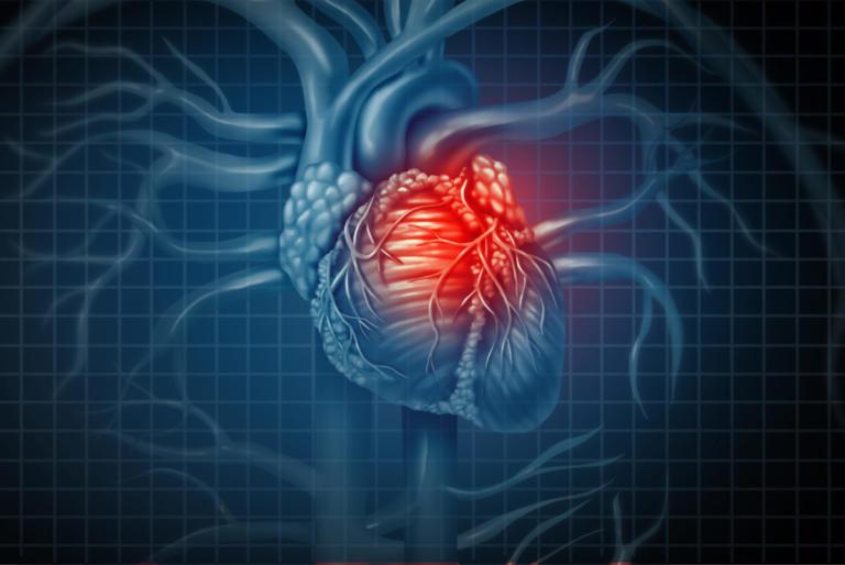 Καρδιακή προσβολή – Πρώτες βοήθειες: Τρία πράγματα που πρέπει να κάνετε εκείνη την στιγμή | Newsit.gr