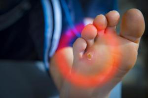 Τι να κάνετε για φουσκάλες, κάλους και σκληρύνσεις στα πόδια