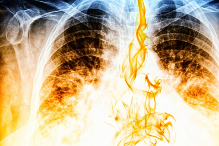 Σε πόσο καιρό θα καθαρίσουν οι πνεύμονες, αν κόψετε σήμερα το κάπνισμα | Newsit.gr
