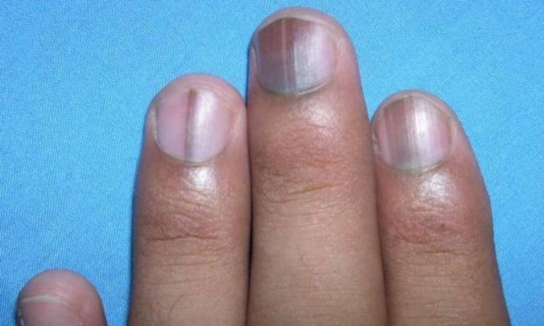 Τι σημαίνει αν σχηματιστεί μια μαύρη γραμμή στο νύχι σας – Μην το αγνοήσετε! | Newsit.gr