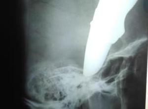 Έφτασε στο νοσοκομείο με ένα μαχαίρι καρφωμένο στο κεφάλι του! [ΣΚΛΗΡΕΣ ΕΙΚΟΝΕΣ]