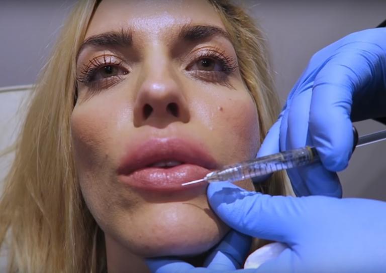 Μαντώ Γαστεράτου: Επισκέφθηκε τον πλαστικό χειρουργό και… φούσκωσε τα χείλη της on camera!