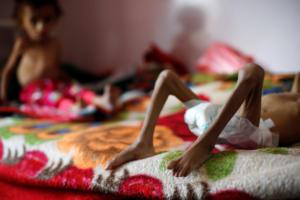 Θρήνος για το κορίτσι σύμβολο της ανθρωπιστικής κρίσης στην Υεμένη
