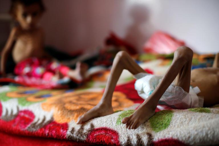 Θρήνος για το κορίτσι σύμβολο της ανθρωπιστικής κρίσης στην Υεμένη | Newsit.gr