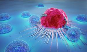 Ανησυχία για τον καρκίνου του θυρεοειδούς – Έχουν υπερδιπλασιαστεί τα κρούσματα!
