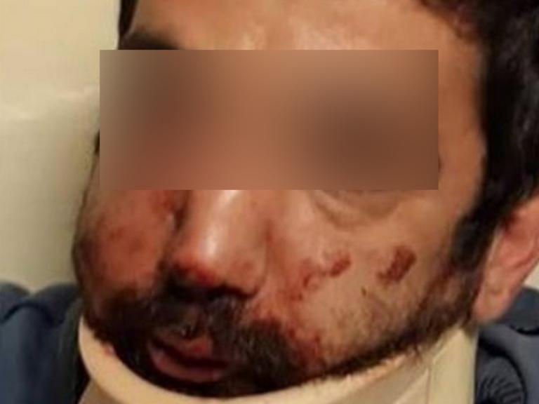 Στο νοσοκομείο ο επιχειρηματίας που κατηγορείται ότι χτύπησε τον ντελιβερά
