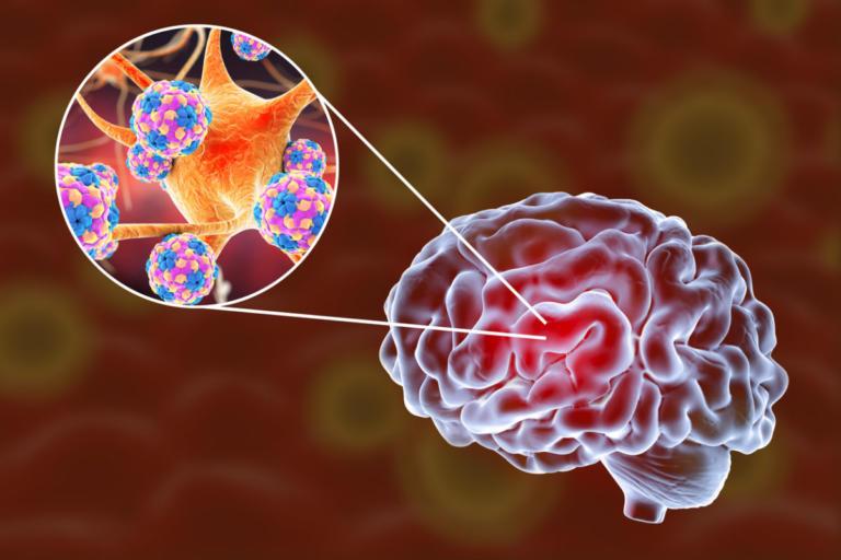 Εγκεφαλίτιδα: Η ύπουλη εγκεφαλική ασθένεια με συμπτώματα που μοιάζουν με γρίπη, αλλά δεν είναι!
