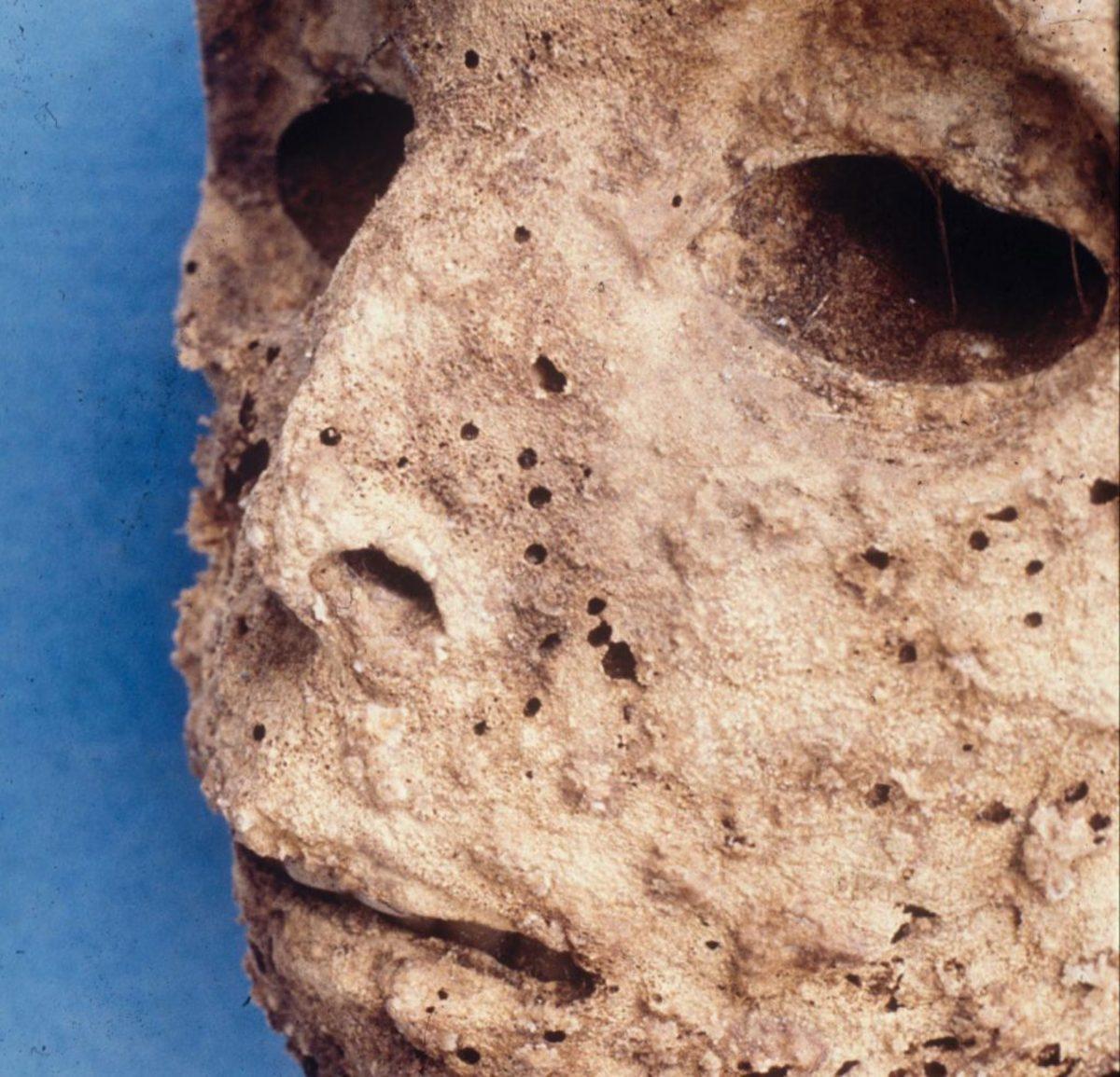 μούμια ηπατίτιδα Β