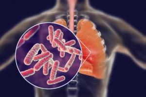 Πνευμονία: Πότε προκύπτει από το απλό κρυολόγημα και τι πρέπει να κάνετε