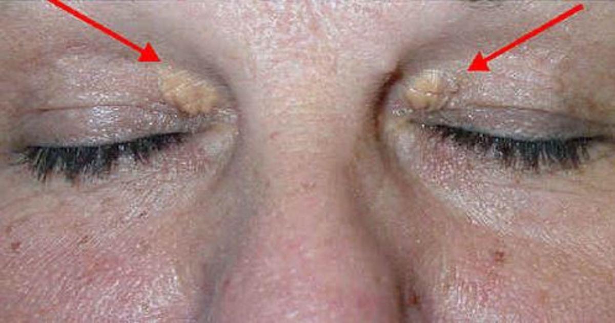 Τι είναι το ξανθέλασμα στα μάτια – Τι αποκαλύπτει για την υγεία σας