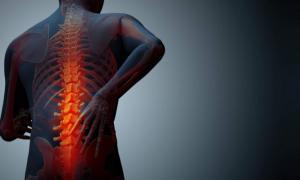 Οστεοπόρωση: Αυτές είναι οι τροφές που ενισχύουν τα οστά