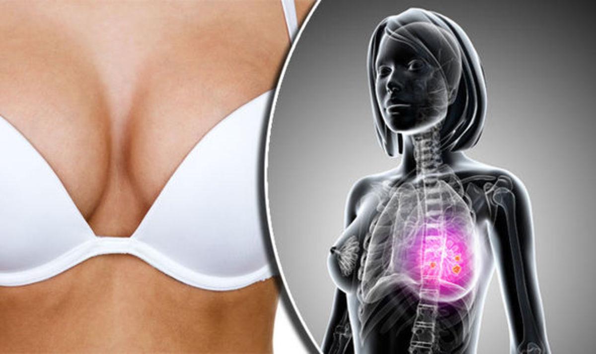 Καρκίνος του μαστού: Συμπτώματα – Τα 9 προειδοποιητικά σημάδια