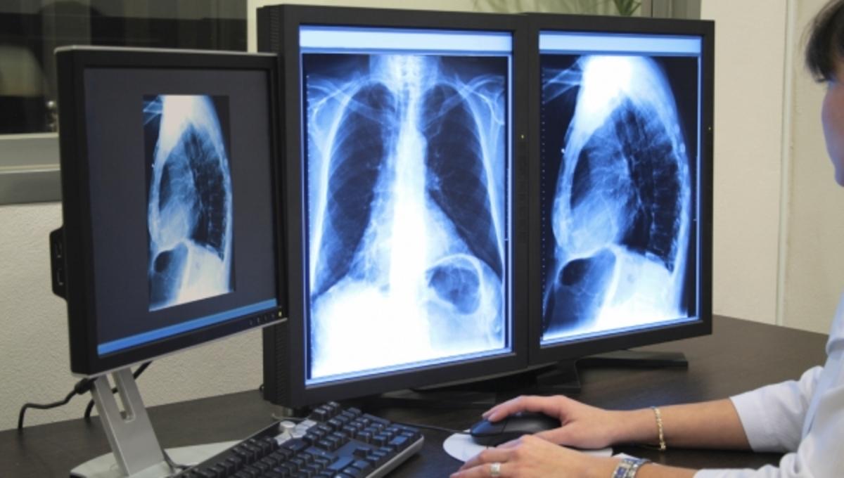 νέο όργανο ανθρώπινο σώμα καρκίνος