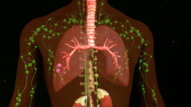Λέμφωμα: Πρόληψη - Πώς γίνεται η αποτοξίνωση στους λεμφαδένες