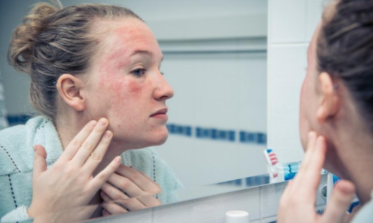 Αλλεργική αντίδραση: Πώς είναι να σας συμβαίνει για πρώτη φορά – Τι να κάνετε άμεσα