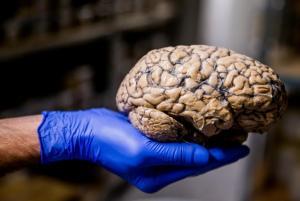 Απίστευτο πείραμα! DNA από Νεάντερταλ σε ανθρώπινους εγκεφαλικούς ιστούς