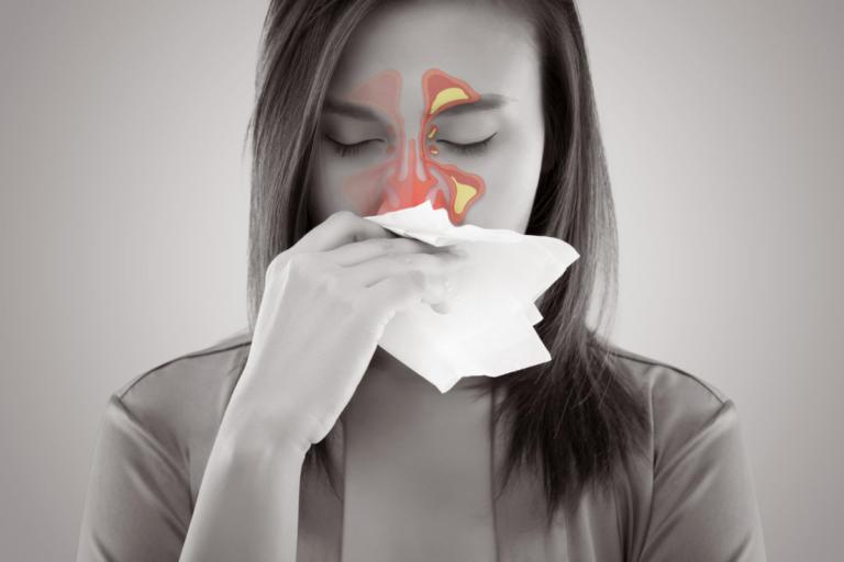 Χρόνια ιγμορίτιδα: Αίτια, συμπτώματα και τρόποι αντιμετώπισης