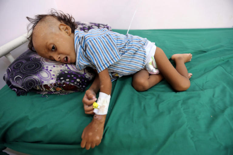 """Η Υεμένη """"σκοτώνει"""" τα παιδιά της! Θερίζει ο υποσιτισμός"""