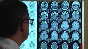 Αλτσχάιμερ: Μπορεί να μεταδοθεί από άνθρωπο σε άνθρωπο!
