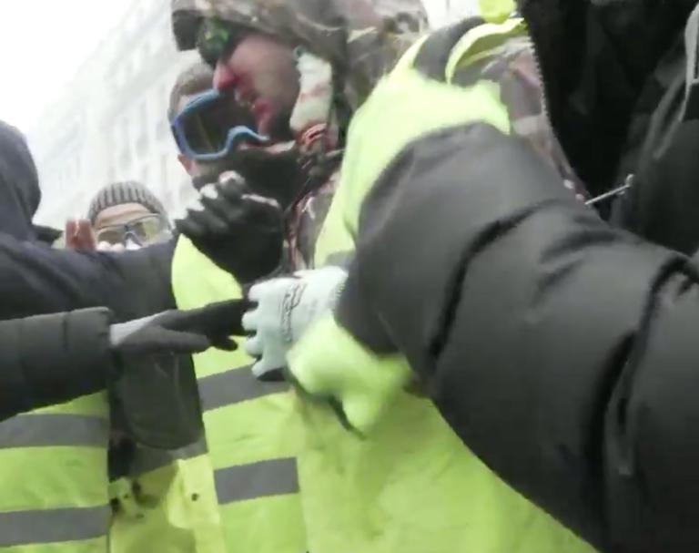 Γαλλία – Κίτρινα γιλέκα: Διαδηλωτής δέχεται πλαστική σφαίρα στο πρόσωπο – video