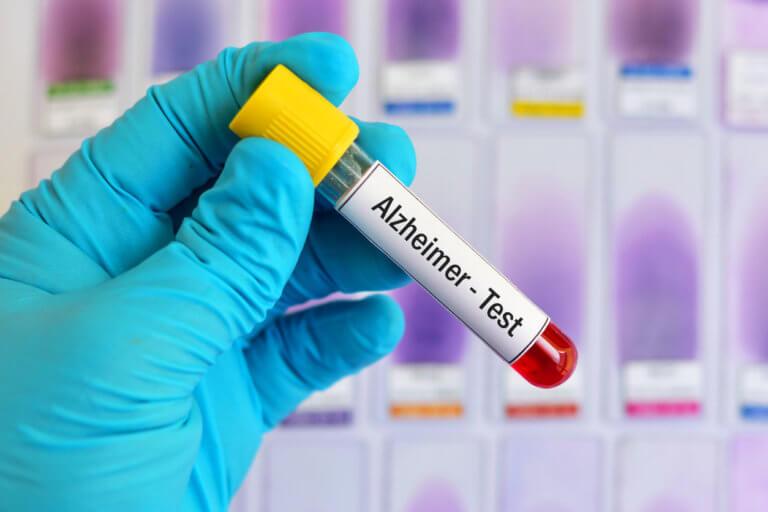 Τεστ αίματος εντοπίζει το Αλτσχάιμερ 16 χρόνια πριν εμφανιστούν τα πρώτα συμπτώματα – Ποια είναι αυτά | Newsit.gr