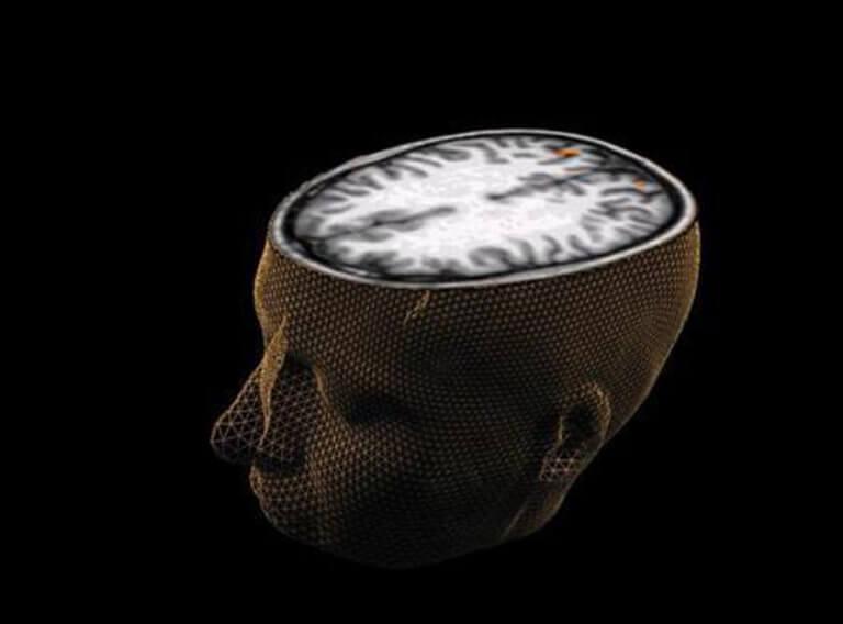 Σήματα του εγκεφάλου «μεταφράστηκαν» σε καθαρή ομιλία!   Newsit.gr
