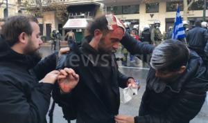 Χτύπησαν φωτορεπόρτερ και του έκλεψαν και τον εξοπλισμό!