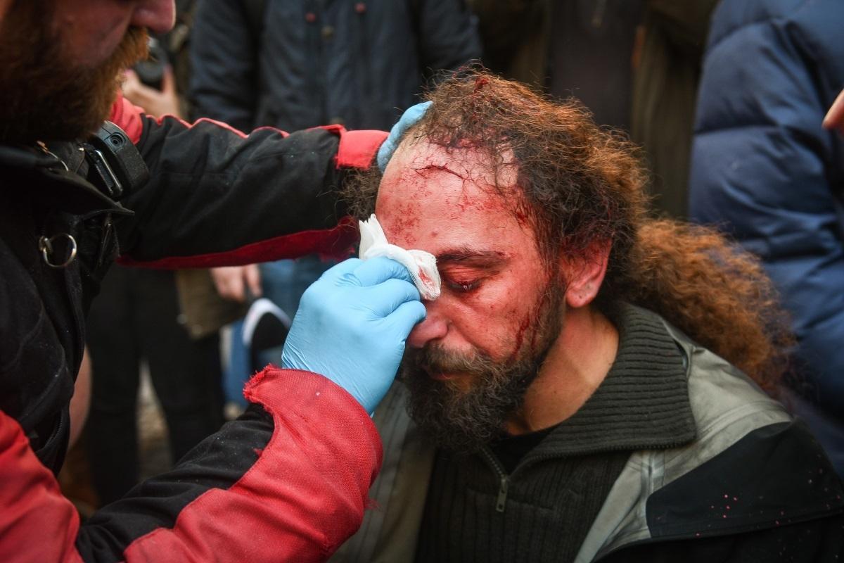 Μια εικόνα που συγκλόνισε… | Newsit.gr