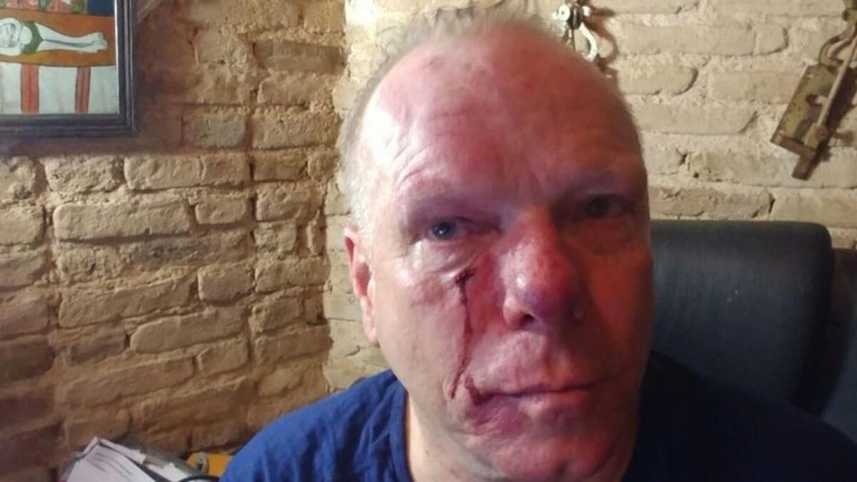 «Ντοκιμαντέρ για τη Χρυσή Αυγή ρε;» - «Βοήθεια, αφήστε με, δεν μπορώ να αναπνεύσω» - Η στιγμή της φασιστικής επίθεσης στον Θωμά Ιακόμπι