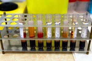 ΚΕΕΛΠΝΟ – γρίπη: Αυτές είναι οι οδηγίες για την αντιμετώπιση της έξαρσης