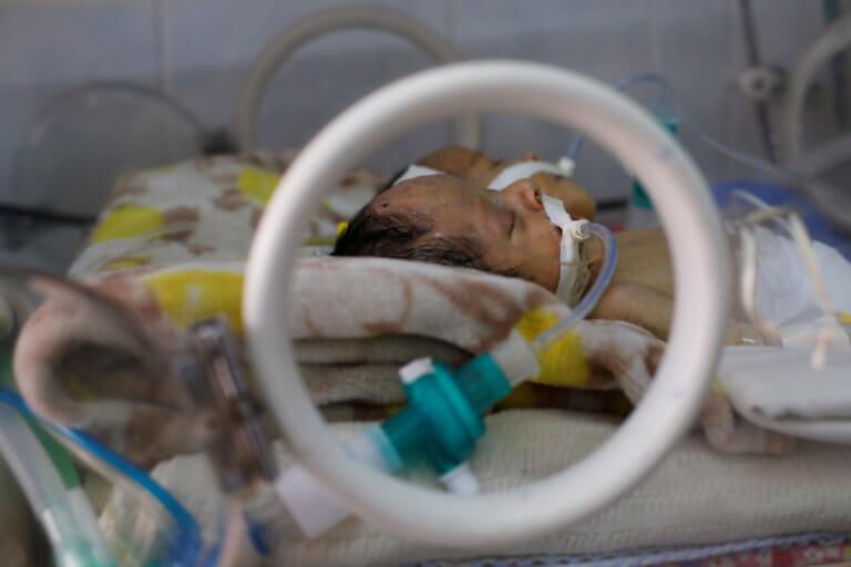 Πέθαναν τα σιαμαία βρέφη στην Υεμένη – Δεν άνοιξαν τα σύνορα για να μεταφερθούν στο εξωτερικό!   Newsit.gr