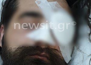 Απίστευτος τραυματισμός φιλάθλου στο ΟΑΚΑ! Έχασε το μάτι του από επίθεση αστυνομικού – pics