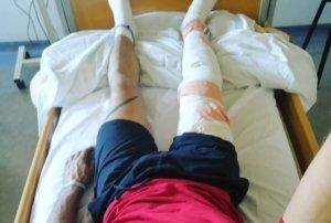 Στο νοσοκομείο γνωστός Έλληνας ενδυματολόγος – Η φωτογραφία μετά την επέμβαση
