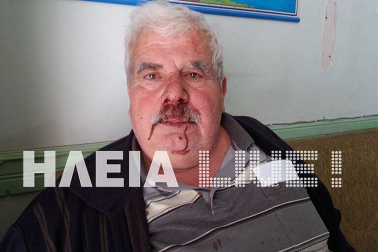 Ηλεία: Ξυλοδαρμός αγρότη που ζητούσε τα λεφτά του – «Δεν σεβάστηκαν ούτε το πρόβλημα της υγείας μου» [pics] | Newsit.gr