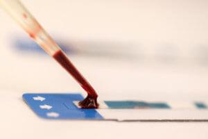 Άμεση και δωρεάν εξέταση για HIV σε τρία σημεία στην Αθήνα!