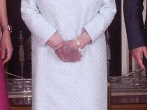 Τι τρέχει με τα μελανιασμένα χέρια της Βασίλισσας Ελισάβετ; [pics]