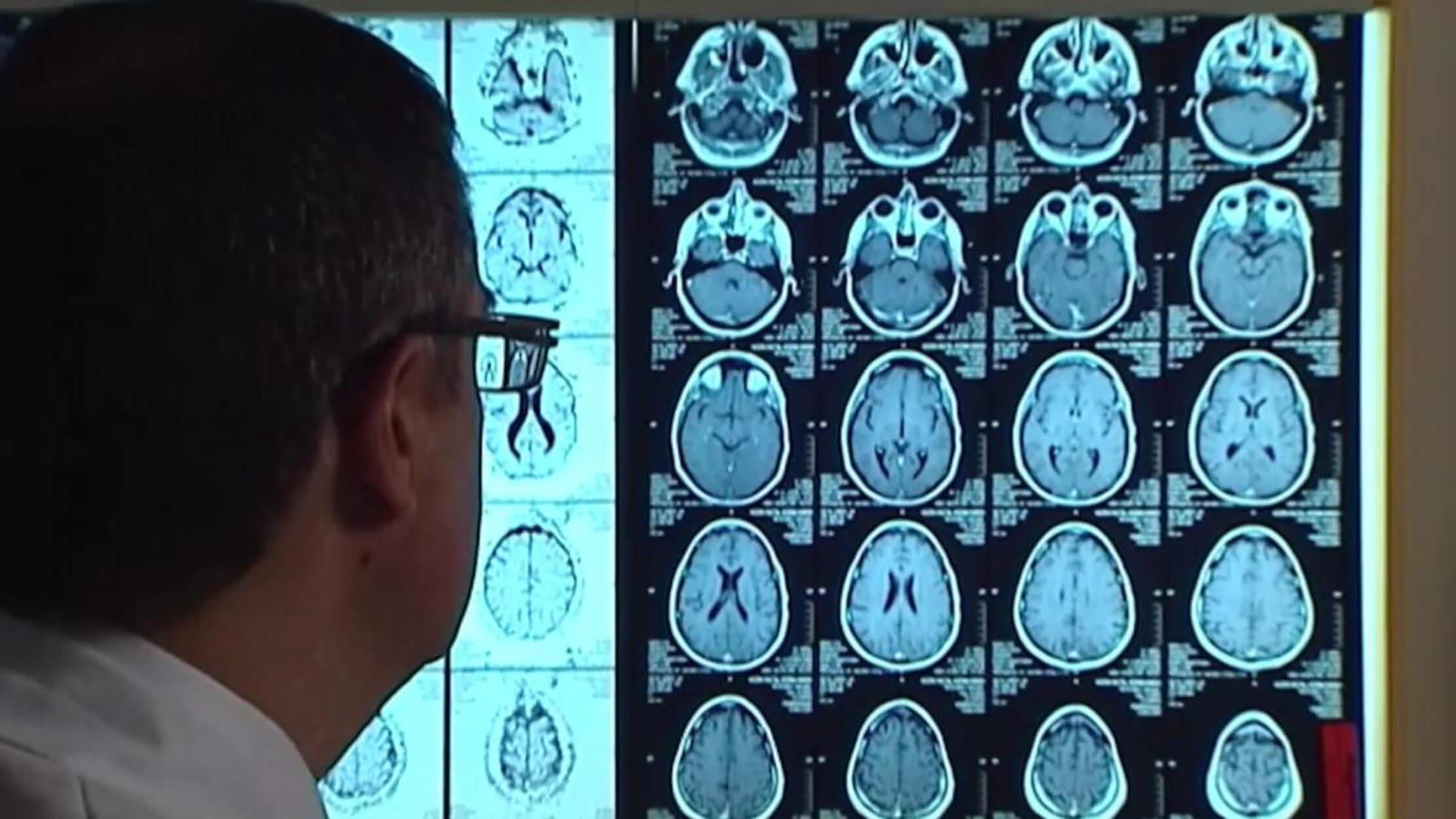 Επιστήμονες επανέφεραν την μνήμη ηλικιωμένων με Αλτσχάιμερ!