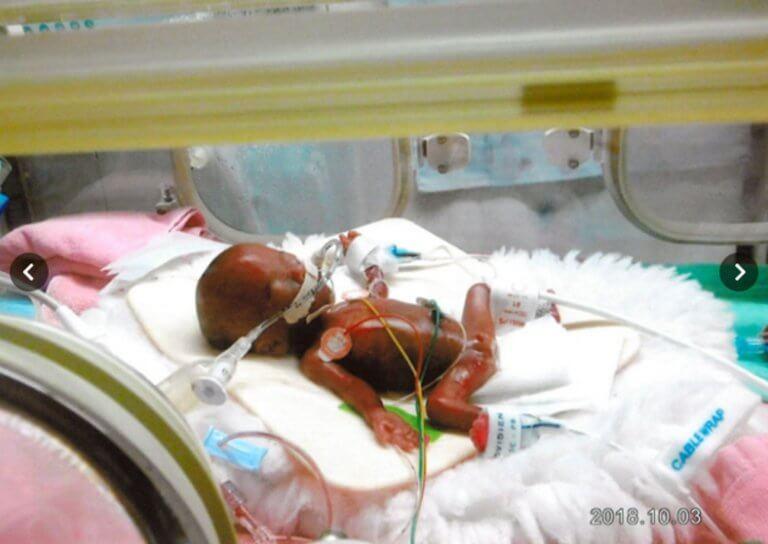 Εξιτήριο για το μωρό βάρους 258 γραμμαρίων, το μικρότερο στον κόσμο [pics]