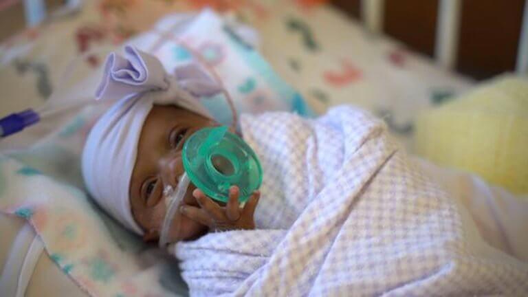 Το μικρότερο μωρό στον κόσμο μεγάλωσε και είναι καλά!