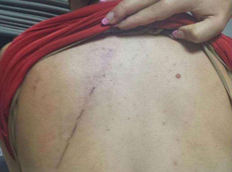 Ηράκλειο: Της έκοψε τα μαλλιά και τη βίασε – Ανατριχίλα από τα σημάδια της κακοποίησης στο σώμα της γυναίκας [pics]