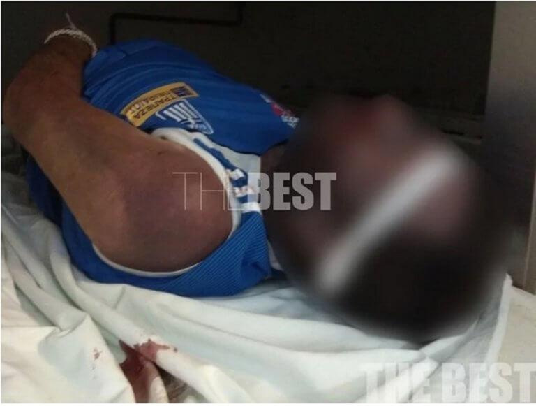 Ιατροδικαστής: Δεν βρέθηκαν κακώσεις στον κρατούμενο που πέθανε στις φυλακές Πάτρας