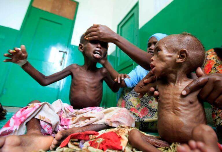 Έρευνα σοκ: Η πείνα ευθύνεται για τους μισούς θανάτους παιδιών στην Αφρική