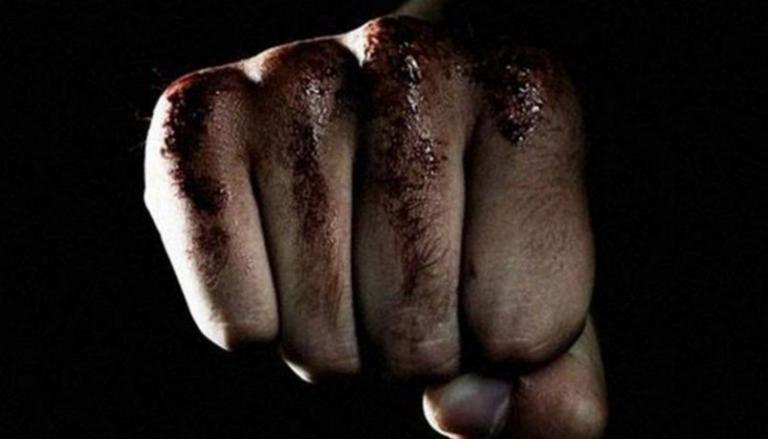 Χανιά: Άγριος ξυλοδαρμός άνδρα – Του έριχναν κλωτσιές στο κεφάλι!