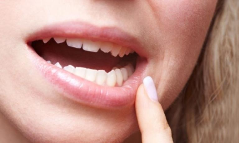 Κορονοϊός: Προκαλεί και απώλεια δοντιών; Τι δείχνουν νέα στοιχεία